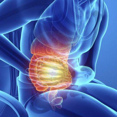 Irritable bowel belly pain